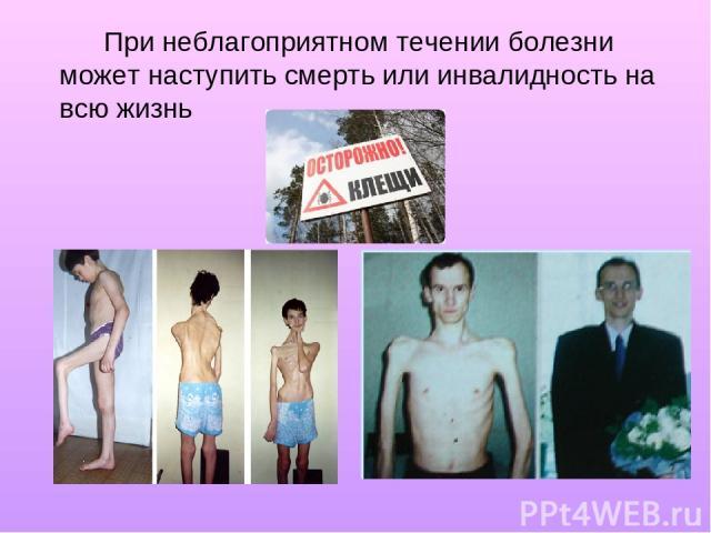 При неблагоприятном течении болезни может наступить смерть или инвалидность на всю жизнь