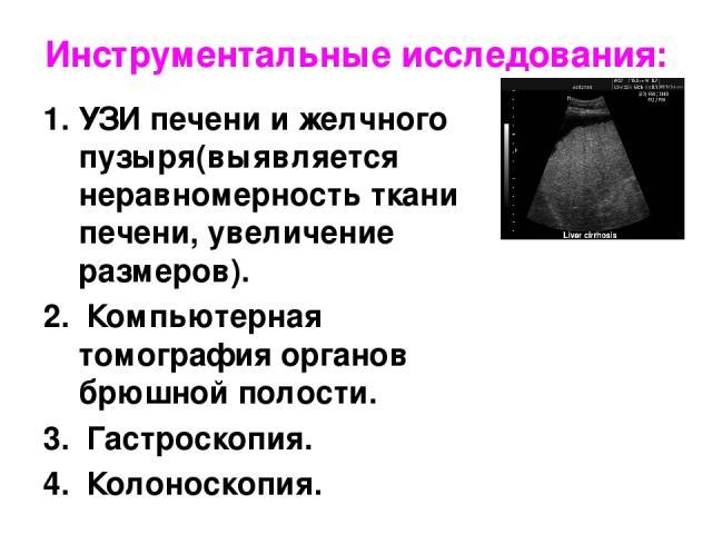 Инструментальные исследования: УЗИ печени и желчного пузыря(выявляется неравномерность ткани печени, увеличение размеров). Компьютерная томография органов брюшной полости. Гастроскопия. Колоноскопия.