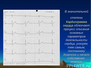 В значительной степени Кардиограмма сердца облегчает процесс описания основных п