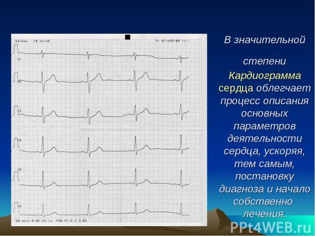 В значительной степени Кардиограмма сердца облегчает процесс описания основных параметров деятельности сердца, ускоряя, тем самым, постановку диагноза и начало собственно лечения.