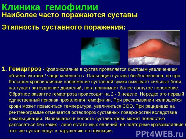 Кровоизлияние в сустава пальца