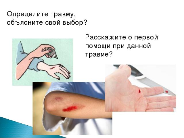 Определите травму, объясните свой выбор? Расскажите о первой помощи при данной травме?