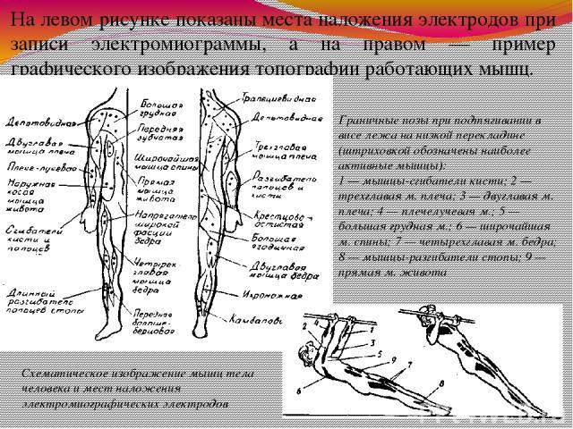 На левом рисунке показаны места наложения электродов при записи электромиограммы, а на правом — пример графического изображения топографии работающих мышц. Схематическое изображение мышц тела человека и мест наложения электромиографических электродо…