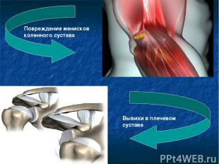 Повреждение менисков коленного сустава Вывихи в плечевом суставе