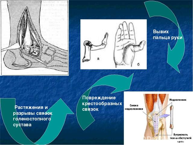 Растяжения и разрывы связок голеностопного сустава Вывих пальца руки Повреждение крестообразных связок
