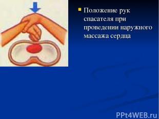 Положение рук спасателя при проведении наружного массажа сердца