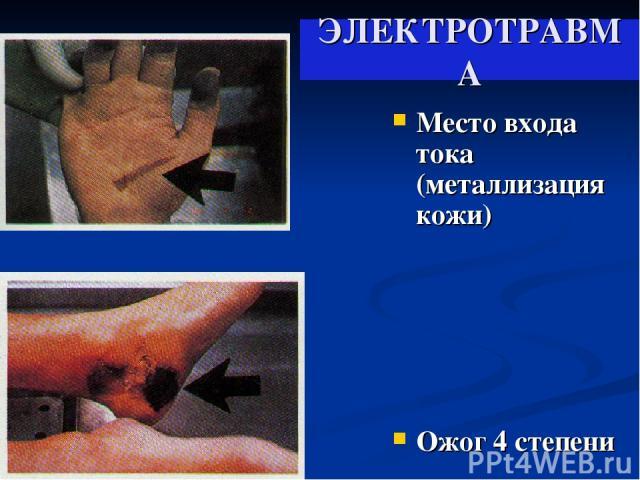 ЭЛЕКТРОТРАВМА Место входа тока (металлизация кожи) Ожог 4 степени