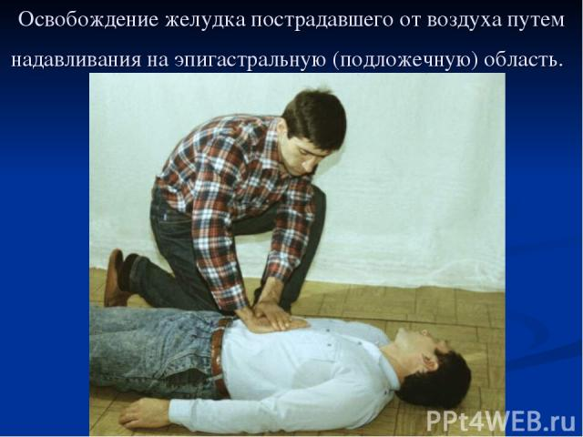 Освобождение желудка пострадавшего от воздуха путем надавливания на эпигастральную (подложечную) область.
