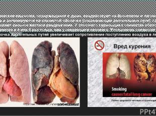 Химические вещества, содержащиеся в дыме, воздействуют на бронхиолы и легочную т