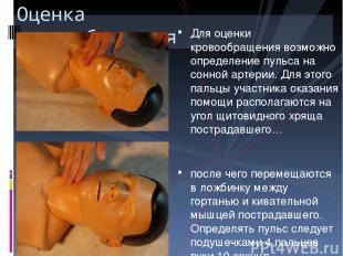 Для оценки кровообращения возможно определение пульса на сонной артерии. Для это