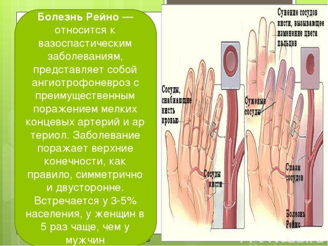 Болезнь Рейно— относится к вазоспастическим заболеваниям, представляет собой ангиотрофоневроз с преимущественным поражением мелких концевыхартерийиартериол. Заболевание поражает верхние конечности, как правило, симметрично и двусторонне. Встреча…