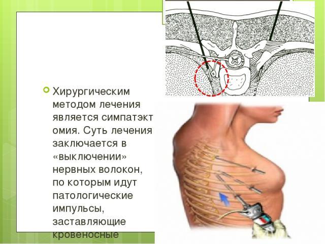 Хирургическим методом лечения являетсясимпатэктомия. Суть лечения заключается в «выключении» нервных волокон, по которым идут патологические импульсы, заставляющие кровеносные сосуды спазмироваться. Существуют несколько видов симпатэктомии. Наимене…
