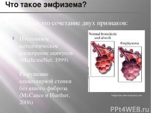 Что такое эмфизема? Постоянное патологическое расширение ацинусов (MedicineNet,