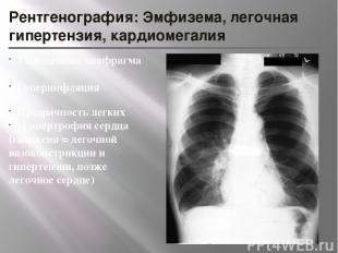 Рентгенография: Эмфизема, легочная гипертензия, кардиомегалия Уплощенная диафраг