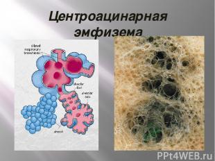 Центроацинарная эмфизема