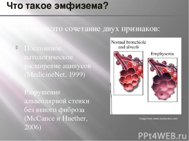 Что такое эмфизема? Постоянное патологическое расширение ацинусов (MedicineNet, 1999) Разрушение альвеолярной стенки без явного фиброза (McCance и Huether, 2006) Фактически,это сочетание двух признаков: Image from www.nucleusinc.com