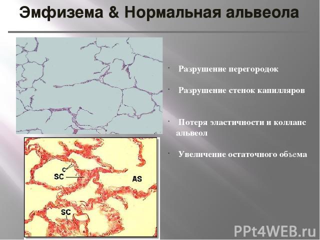 Эмфизема & Нормальная альвеола Разрушение перегородок Разрушение стенок капилляров Потеря эластичности и коллапс альвеол Увеличение остаточного объема