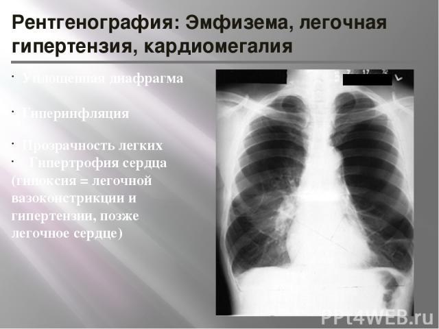 Рентгенография: Эмфизема, легочная гипертензия, кардиомегалия Уплощенная диафрагма Гиперинфляция Прозрачность легких Гипертрофия сердца (гипоксия = легочной вазоконстрикции и гипертензии, позже легочное сердце)