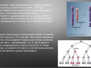 2. Транслокация. Такая разновидность синдрома Дауна встречается реже, всего в 5