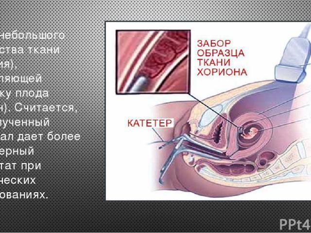 Забор небольшого количества ткани (биопсия), составляющей оболочку плода (хорион). Считается, что полученный материал дает более достоверный результат при генетических исследованиях.