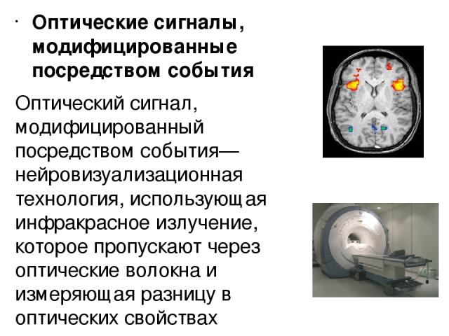 Оптические сигналы, модифицированные посредством события Оптический сигнал, модифицированный посредством события— нейровизуализационная технология, использующая инфракрасное излучение, которое пропускают через оптические волокна и измеряющая разницу…
