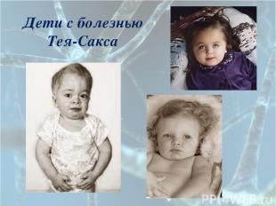 Дети с болезнью Тея-Сакса