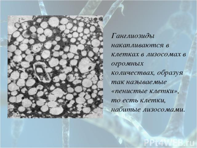 Ганглиозиды накапливаются в клетках в лизосомах в огромных количествах, образуя так называемые «пенистые клетки», то есть клетки, набитые лизосомами.