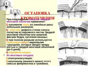 ОСТАНОВКА КРОВОТЕЧЕНИЯ При повреждении синусов твердой мозговой оболочки применя