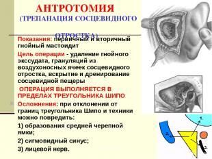 АНТРОТОМИЯ (ТРЕПАНАЦИЯ СОСЦЕВИДНОГО ОТРОСТКА) Показания: первичный и вторичный г