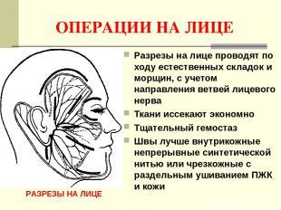 ОПЕРАЦИИ НА ЛИЦЕ Разрезы на лице проводят по ходу естественных складок и морщин,