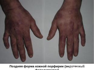 Поздняя форма кожной порфирии (эндогенный фотодерматоз)