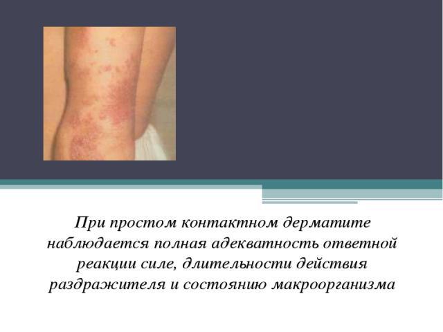 Простой , острый (искусственный, контактный, артифициальный, ирритантный) дерматит При простом контактном дерматите наблюдается полная адекватность ответной реакции силе, длительности действия раздражителя и состоянию макроорганизма