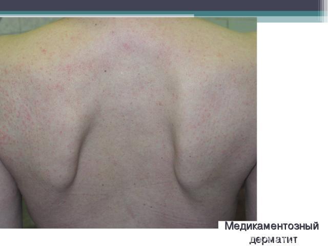 Медикаментозный дерматит