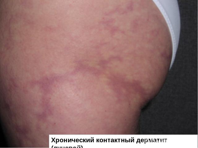 Хронический контактный дерматит (лучевой)