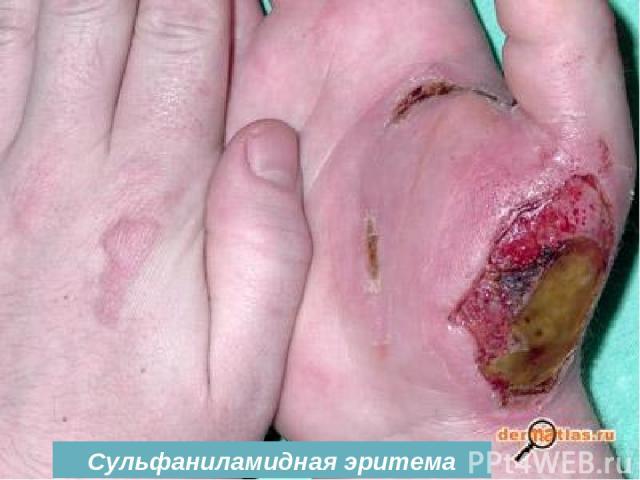 Сульфаниламидная эритема