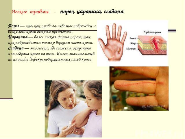 Порез— это, как правило, сквозное повреждение всех слоев кожи острым предметом. Царапина— более легкая форма пореза, так как повреждается только верхняя часть кожи. Ссадина— это место, где ссажена, оцарапана или содрана кожа нателе. Имеет значит…