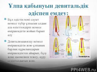 Ұлпа қабынуын девитальдік әдіспен емдеу: Бұл әдістің мәні сауыт немесе түбір ұлп