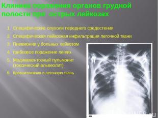 Клиника поражения органов грудной полости при острых лейкозах Специфические опух