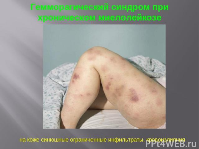 Гемморагический синдром при хроническом миелолейкозе на коже синюшные ограниченные инфильтраты, кровоизлияния