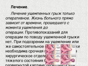 Лечение. Лечение ущемленных грыж только оперативное. Жизнь больного прямо завис