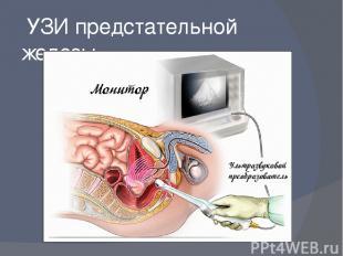 УЗИ предстательной железы