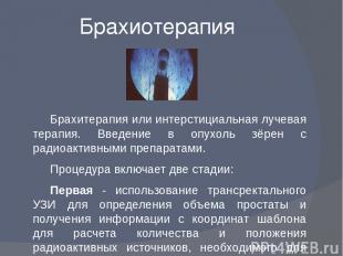 Брахиотерапия Брахитерапия или интерстициальная лучевая терапия. Введение в опух