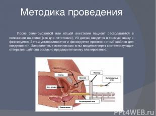 Методика проведения После спинномозговой или общей анестезии пациент располагает