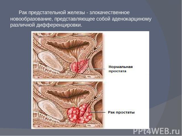 Рак предстательной железы - злокачественное новообразование, представляющее собой аденокарциному различной дифференцировки.