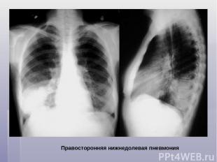 Правосторонняя нижнедолевая пневмония