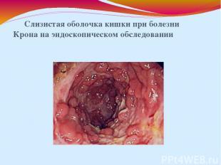 Слизистая оболочка кишки при болезни Крона на эндоскопическом обследовании