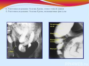 А. Рентгенисследование: болезнь Крона, стеноз тонкой кишки б. Рентгенисследовани