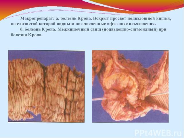 Макропрепарат: а. болезнь Крона. Вскрыт просвет подвздошной кишки, на слизистой которой видны многочисленные афтозные изъязвления. б. болезнь Крона. Межкишечный свищ (подвздошно-сигмоидный) при болезни Крона.