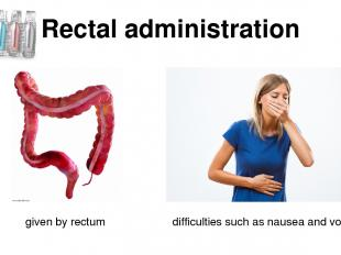 Rectal administration given by rectum difficulties such as nausea and vomiting