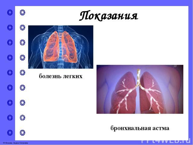 Тровентол Трувент © Фокина Лидия Петровна